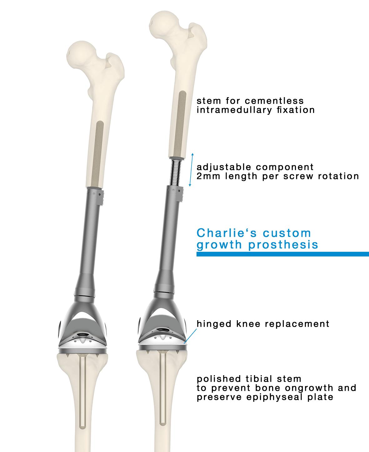 Implant Charlie